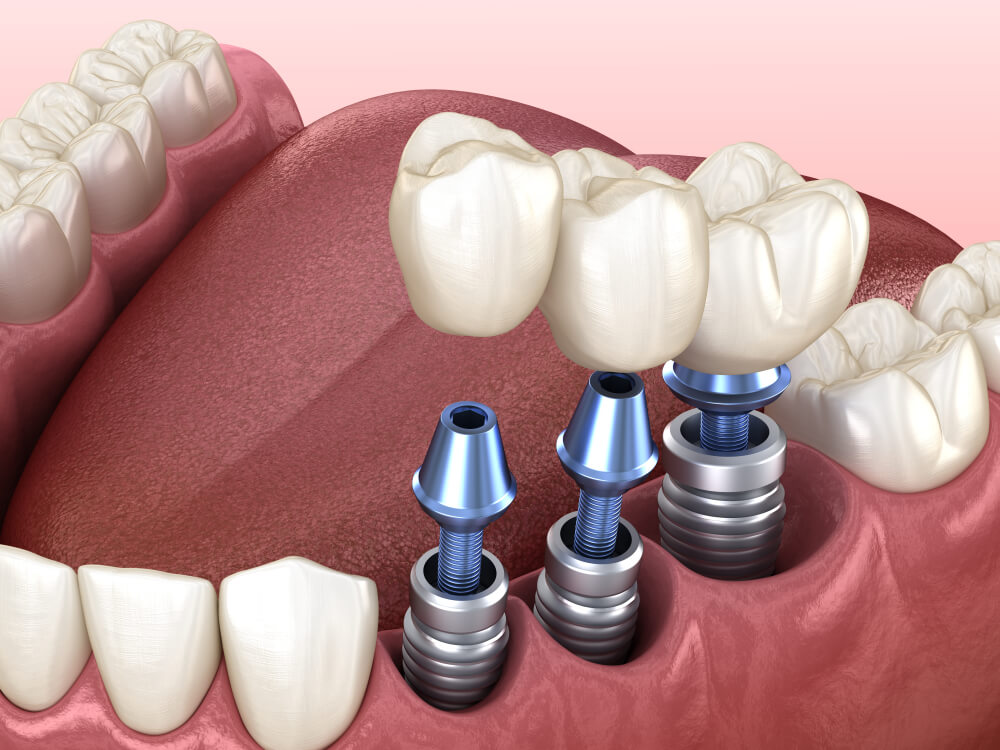 Dental Implants 1 showing the concept of Services