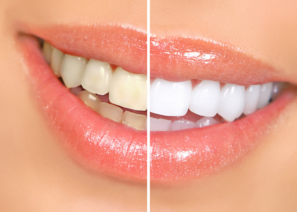 Whitening showing the concept of Services