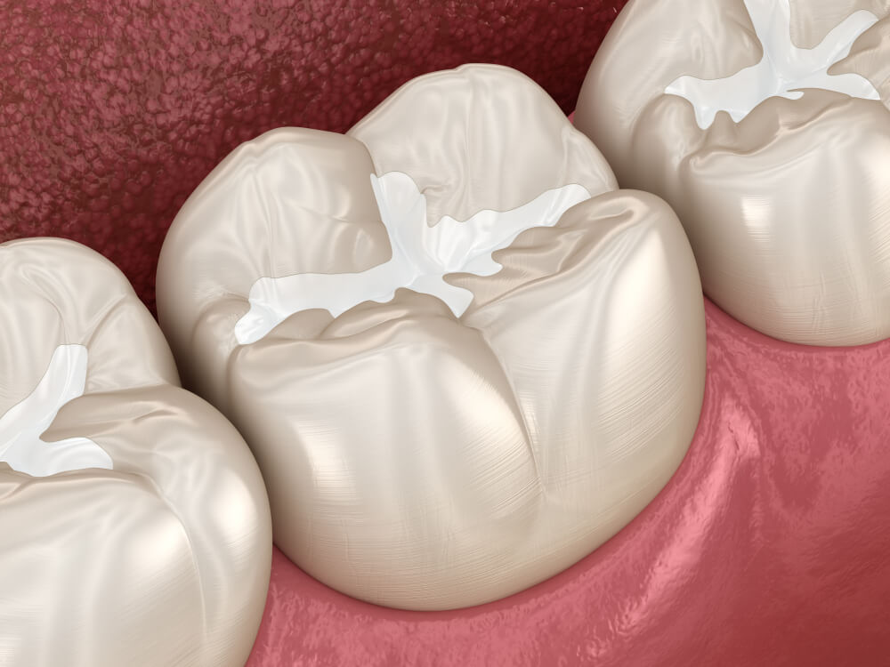 composite fillings tooth colored fillings showing the concept of Services