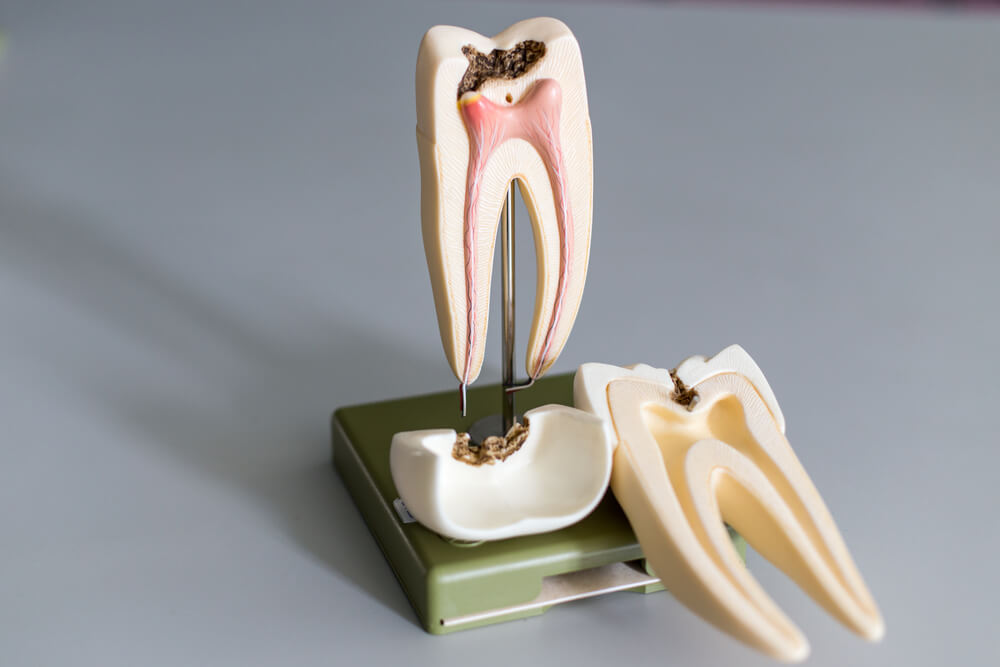 root canal treatment showing the concept of Services