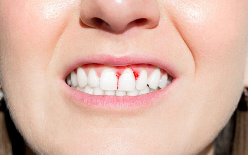 Gums bleeding from gingivitis