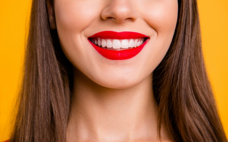 Woman after gum contouring