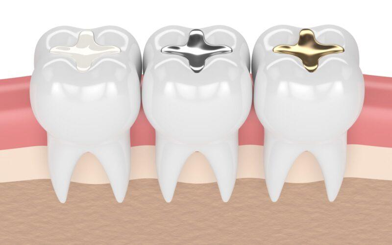 Dental Restoration Materials
